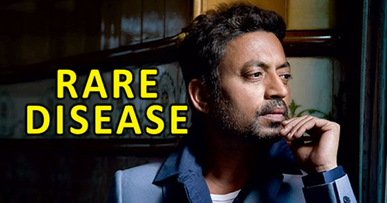 Bollywood actor Irrfan Khan reveals he has 'rare disease'